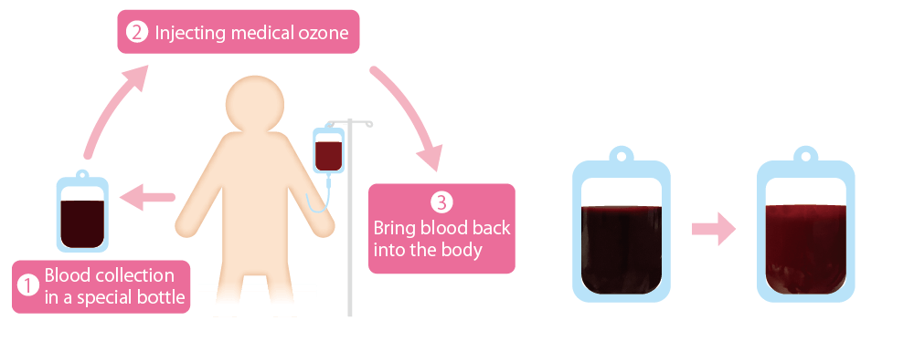 Flow of blood ozone therapy
