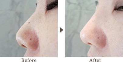 A tip of nose and a ridge of nose has been adjusted beautifully naturally to look like a modulated face