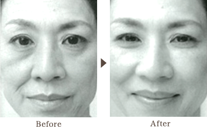 Inject hyaluronic acid nose, chin, lips, smile lines and cheek, wrinkles under eyes. Also Botox jaw injection, forehead ...