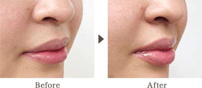 By injecting into the lips, vertical wrinkles become inconspicuous and finish to a fascinating lip.