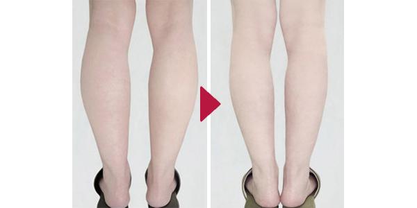 Tiem Botox|Eri Clinic Omotesando