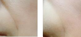 ヒト歯髄幹細胞培養上清治療 イメージ