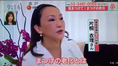 ★12/21(木)NHK★『あさイチ』に衣理院長が出演しました! イメージ