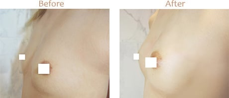 Tăng Kích Cỡ Ngực (chỉnh vòng 3) của Dr Eri – Eri Clinic Omotesando イメージ