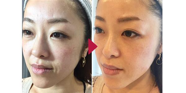 Thread Lift - Eri Clinic Omotesando|Eri Clinic Omotesando