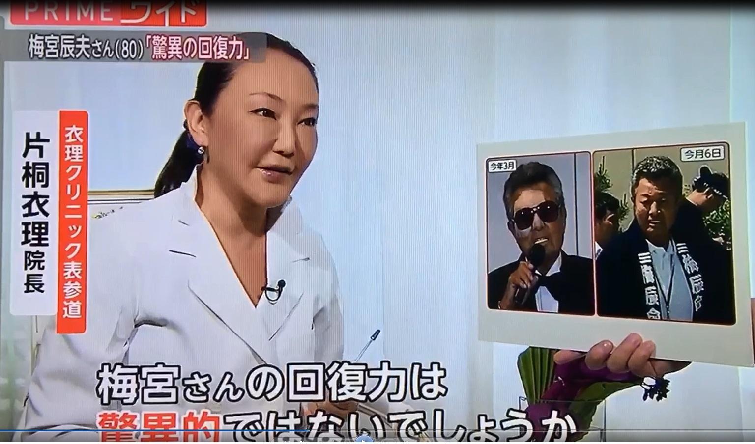 ★5/10(木)フジテレビ 『PRIME news evening』に衣理院長が出演しました! イメージ