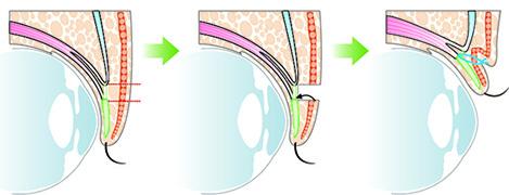 Cosmetic surgery (double eyelids, eyelids)|Eri Clinic Omotesando