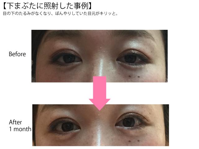 ThermageFLX|Eri Clinic Omotesando