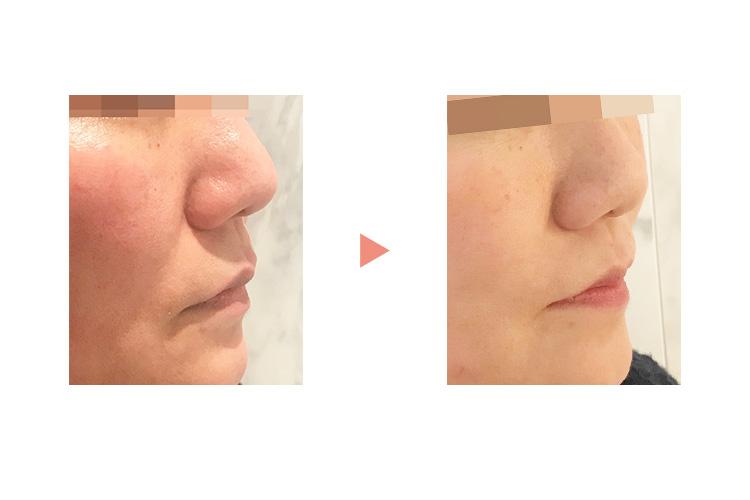 頬の照射例:ほうれい線が薄くなり、引き締まった印象に。 イメージ