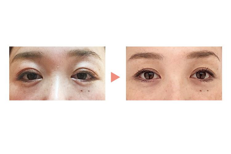 目元の照射例:目元のたるみが薄くなり、キリッとした印象に。 イメージ