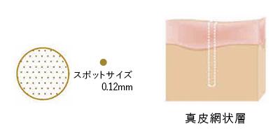 スポットサイズ 0.12mm 真皮網状層